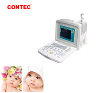 Contec CE CMS600B-3 High quality Digital Portable Ultrasound Scanner systems for cardiac