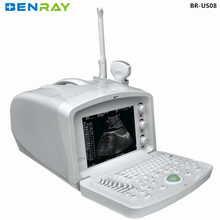 BR-US08 portable ultrasound fetal doppler ultrasound vascular doppler ultrasound manufacturer