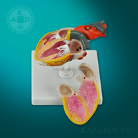 medical anatomical Human heart 3d model/ artificial teaching heart disease model