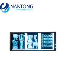 Best Selling Factory Direct LED medical negatoscope film viewer