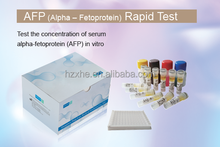 Medical Diagnostic Test Kits Tumor Marker Rapid Test ( FOB AFP CEA PSA) (Colloidal Gold)