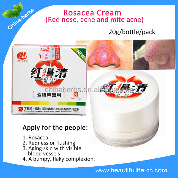 herbal cream to cure acne rosacea natural remedies