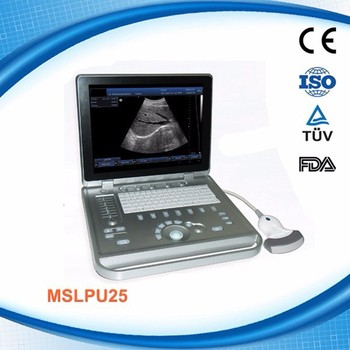 portable home ultrasound machine