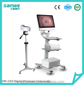 SANWE 3304 Digital Video Colposcope with Two Monitors, Colposcope Software, Video Colposcope