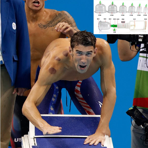 2016 Olympic Michael Phelps Health supplies chinese treatment 7pcs set cheap online shop wholesale amazon ebay wish hot cupping