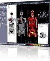 Advanced visualization software for Fusion