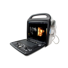 China Portable 4D Color Doppler Ultrasound Machine with lowest price