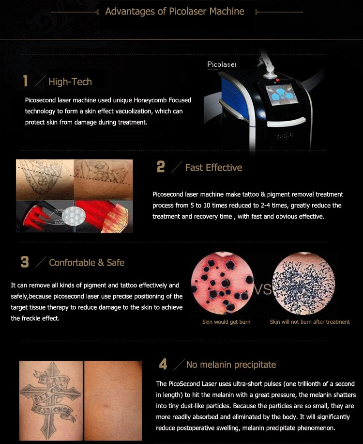 PicoSecond laser new laser for tattoo removal pigment removal
