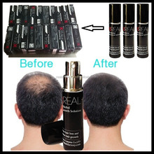 Most popular products on the market Stop hair loss quickly, fast effect on hair re-growth REAL PLUS hair growth spray