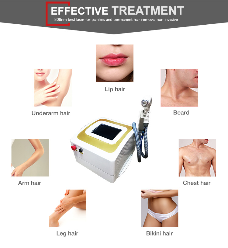 Permanent hair removal 2018 portable / 808 diode laser hair removal machine price