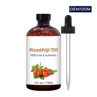 wholesale rosehip oil 100% pure organic rose hip seed oil