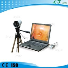 LTY9800 High Pixels Digital Vagina Colposcope In 2015