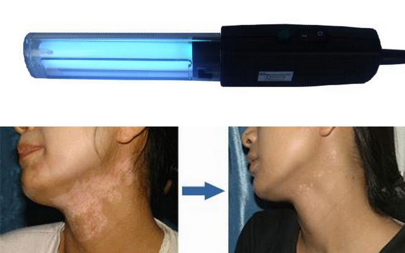 UVB lamp for vitiligo, psoriasis cure, eczema and other skin diseases