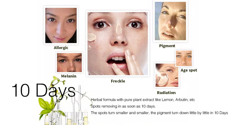 Acne scar melasma blemish freckle and speckle removal face creams to remove dark spots whitening fade out cream