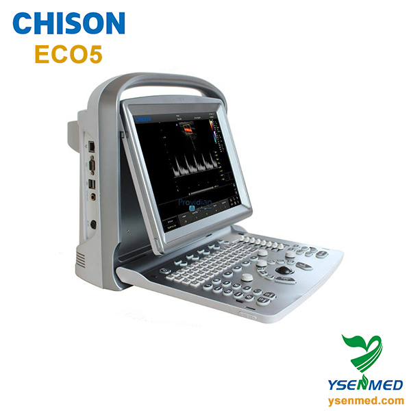 Ultrasonido portátil sistema Chison ECO 5 Doppler a Color