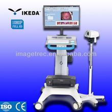 protable colposcopy device/colposcope software/plastic vagina images picture