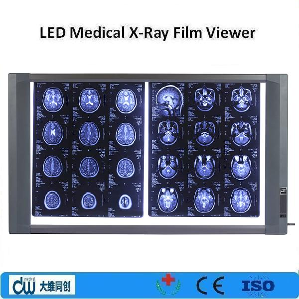 High illumination x ray image viewer/Led medical x-ray film viewer