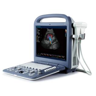 Sonoscape S2 portable echo ultrasound,4D echochardiography,Medical echo