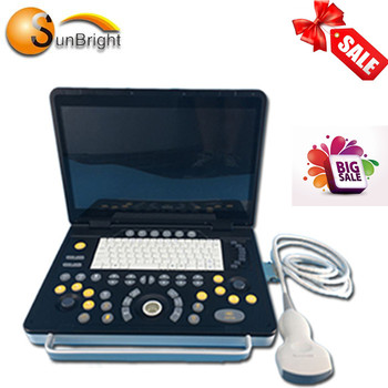 CE ISO approved laptop OB/GYN ultrasound scanner with high quality