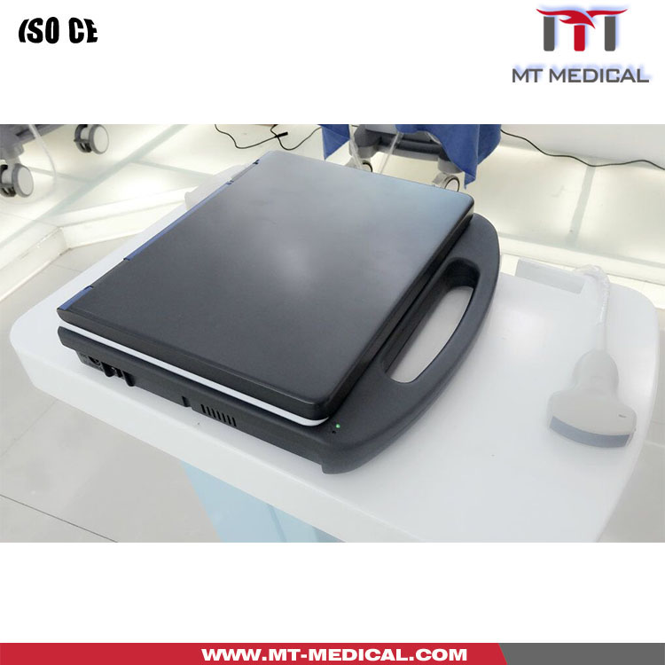 New Color Doppler Ultrasound Machine Portable Devices Ultrasonic Diagnostic Scanner