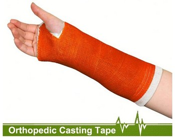 Medical Bone Fracture Treatment Bandage Factory Priced External Fixation Fiberglass Casting Tape