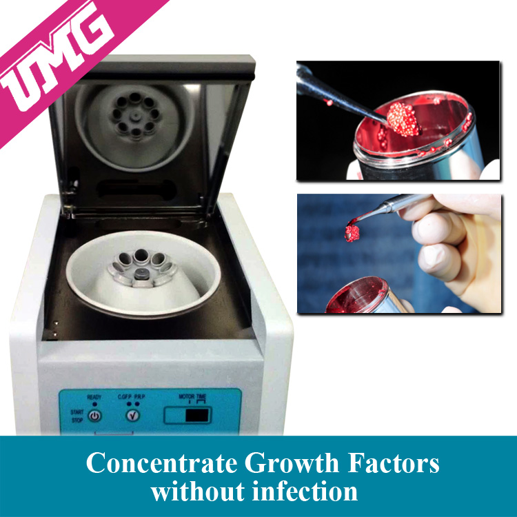 Top selling elasticity blood centrifuge machine
