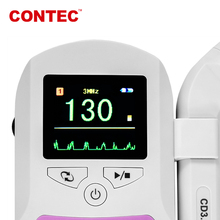 CONTEC SonolineC Color screen Pocket Fetal Heart Doppler, Baby Sound Ultrasonic Fetal Heartbeat