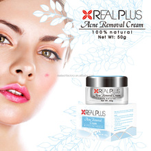 100% quality approved hottest no side effect acne free cream