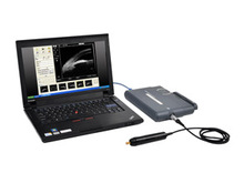 ophthalmology products: PT-320W Portable Ultrasound Biomicroscope
