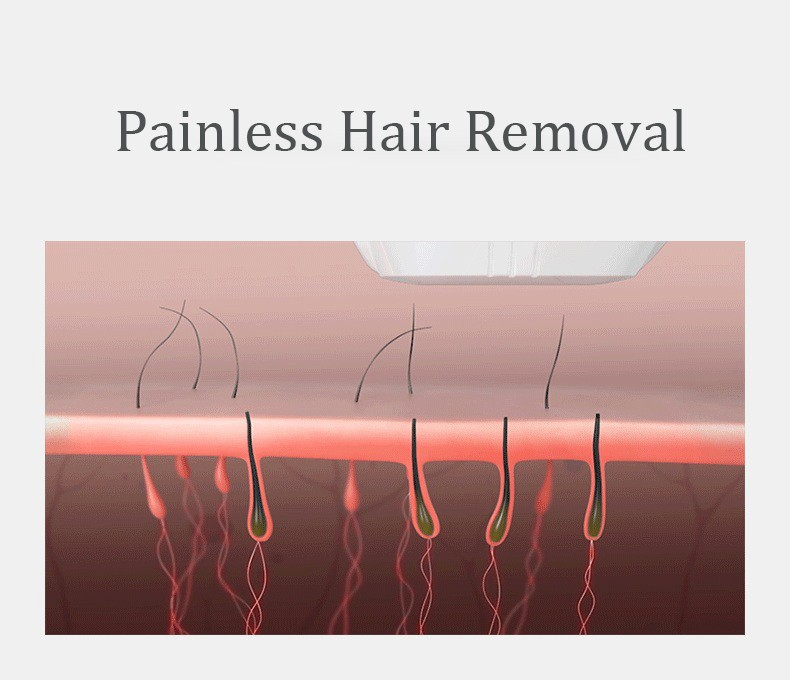 HANA Safety and easy to operate ipl hair removal laser machine