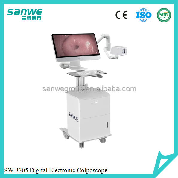 Sanwe SW-3305 HD Digital Electronic Colposcope, 2380000 pixels cameraVideo Colposcope