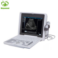 MY-A003 Digital Portable ultrasound machine for pregnancy, ultrasound scanner