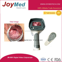 video portable digital electronic colposcope vagina pictures camera
