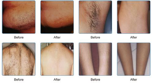 FDA, TGA and Medical CE appoved 808nm diode laser permanent hair removal