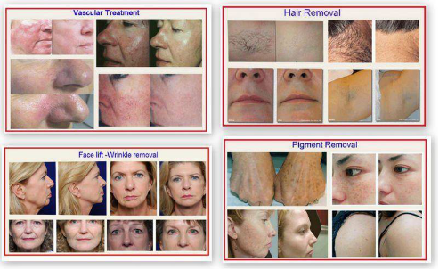 IPL hair removal machine before and after