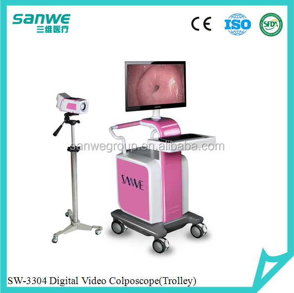 Electronic Colposcope Type camera colposcopy,hospital equipments, trolley video colposcope