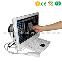 MY-A006 Compatible with laser/inkjet printers Touch screen LCD ultrasound scanner