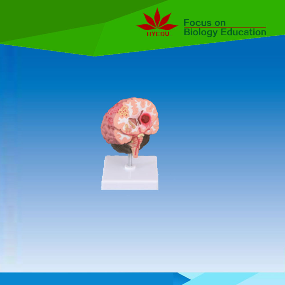 Medical science type and brain pathologies model