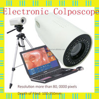 LED Gynaecology video colposcope price in China MSLCE01-N