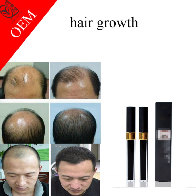 Hair Growth Lotion fast hair growth products anti hair loss
