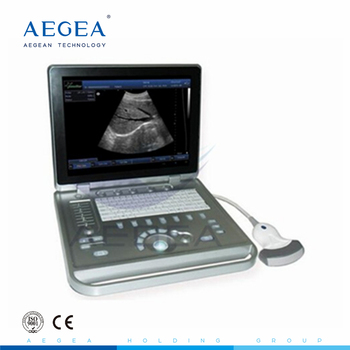 AG-BU009 One power adapter portable heart ultrasound machine laptop