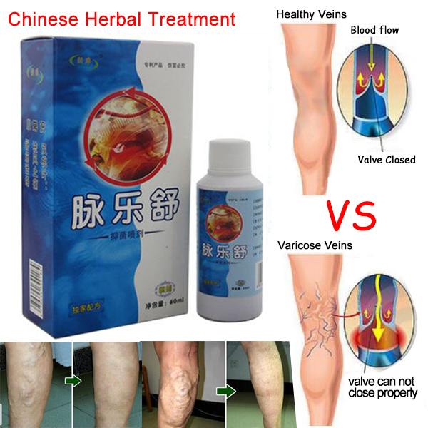 Vasculitis spray ,Varicose veins treatment spray on leg acid bilges itching earthworm lumps bad leg cure natural solution