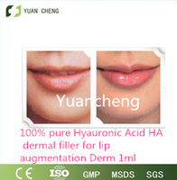 Hyaluronic acid fillers,cosmet
