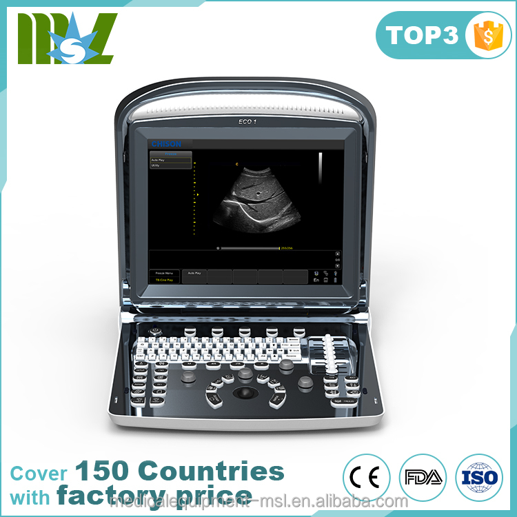 Top quality Black and white portable Ultrasound Scanner,chison eco1 ultrasound best price
