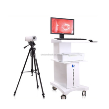 China supplier medical gynecology trolley video colposcop