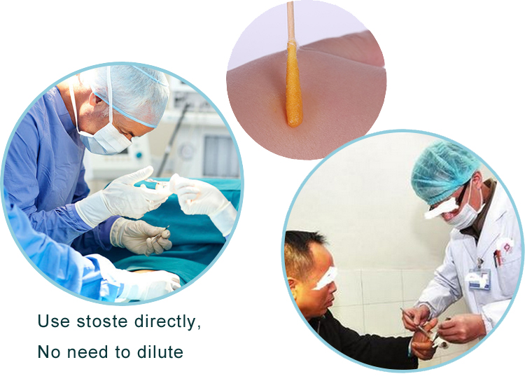 hospital injection, puncture and surgical topical Iodine skin disinfectants/ types of disinfectant