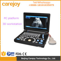 CE Approved Laptop PC platform 3D image Ultrasound Machine/Scanner with 3.5Mhz Convex probe