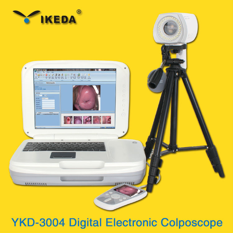digital mini colposcope camera with best price from China