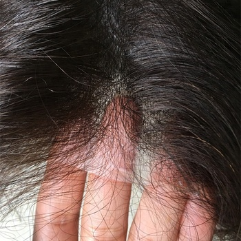The most natural hair line invisible super thin skin men toupee V-loop in stock