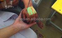 See The Vein For Nurse Doctor Machine Vein Illuminator